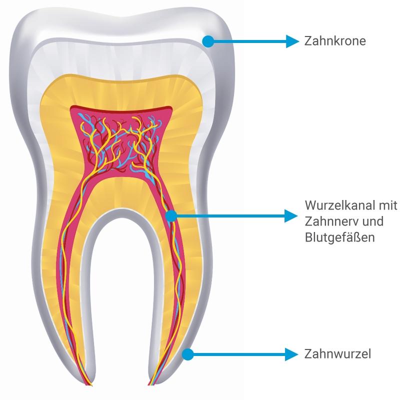 Wurzelbehandlung nach zahn verfärbt sich grau Wurzelbehandlung